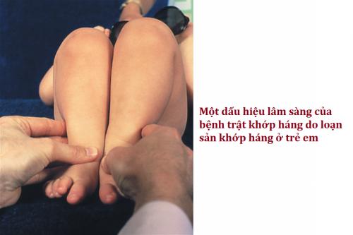 Nẹp ngang chỉnh dáng đi cho trẻ em loạn sản phát triển khớp háng