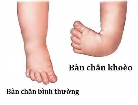 trẻ bị dị tật chân